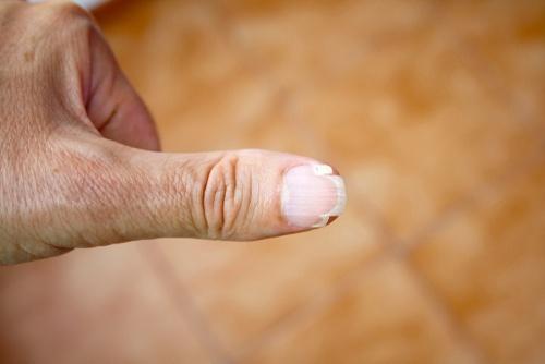 Cracked, brittle or split nails