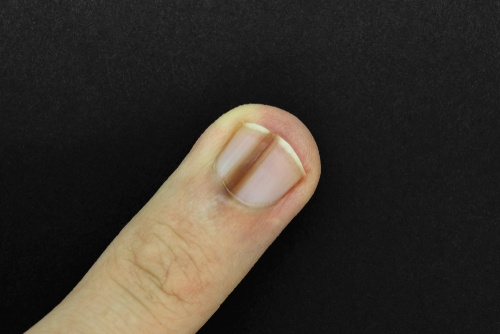 Dark lines underneath your nail