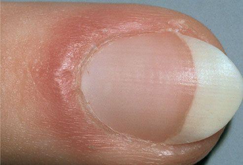 Puffy nail fold