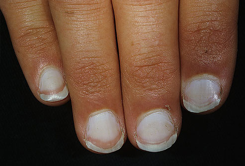 White or pale nails